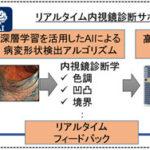 内視鏡検査でAIが大腸がんを自動診断、動画から瞬時に病変を発見